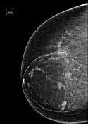 Breast hamartoma | Radiology Reference Article