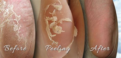 What causes feet to peel