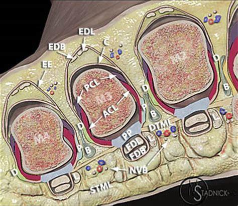 lesser metatarsophalangeal joint instability radsource
