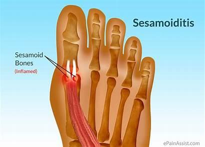 Sesamoiditis Toe Pain Bones Joint Foot Sesamoid