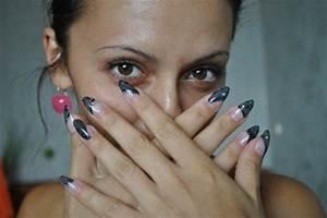 Анализ грибка ногтей нижний новгород
