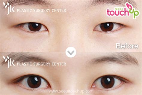 epicanthoplasty canthoplasty   seoul touchup