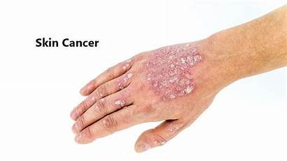 Cancer Skin Symptoms Causes Remedies Treatments Changes