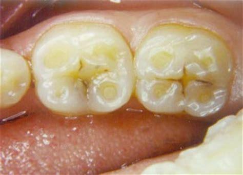 bruxism grinding    impact  teeth