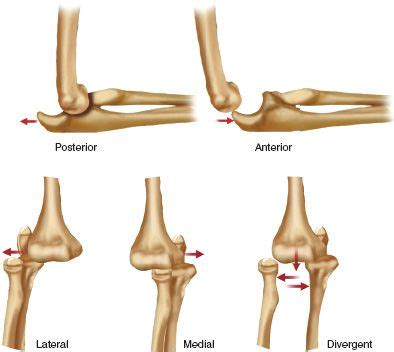 Fractures and Dislocations of the Elbow | Musculoskeletal Key
