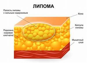 Папиллома на молочной железе лечение народными средствами