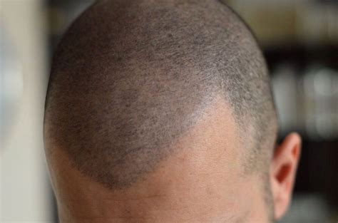tricopigmentation celine  maquillage permanent