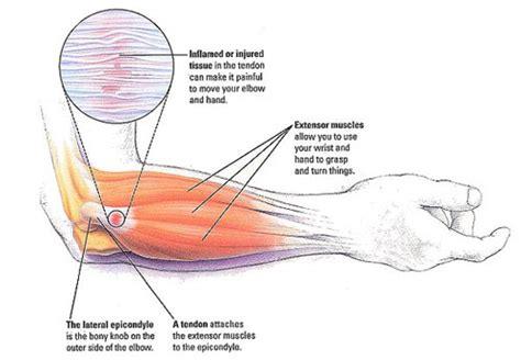 dolore interno braccio sinistro dolore al gomito le cause pi 249 frequenti