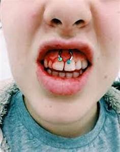 Smiley Piercing | Med Health Daily