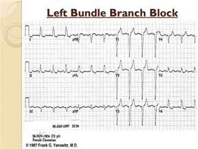 Left Bundle Branch Block