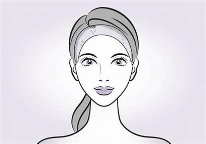 Botox Sweating Stops Happens Excessive Help Hairline