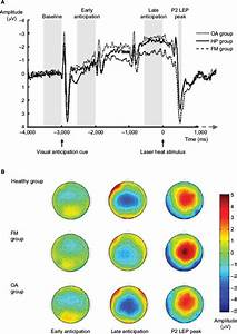 Full Text  Brain Imaging Of Pain  State Of The Art