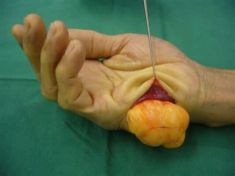 tumours   hand hand surgery associates