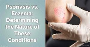 Psoriasis vs. Eczema: Determining the Nature of These ...