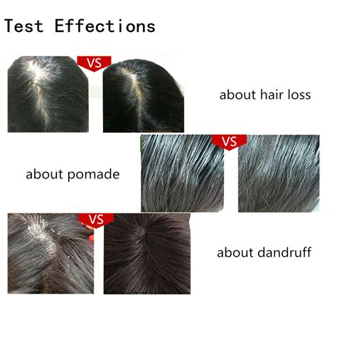 light therapy hair growth comb micro current 3 in 1 intense pulsed light laser hair