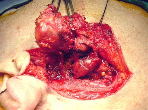 Pictures of Warthin's Tumor of the Parotid Gland ...