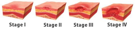 Bed Sores Stages by Tips For Avoiding Bed Sores How To Avoid Skin Breakdown
