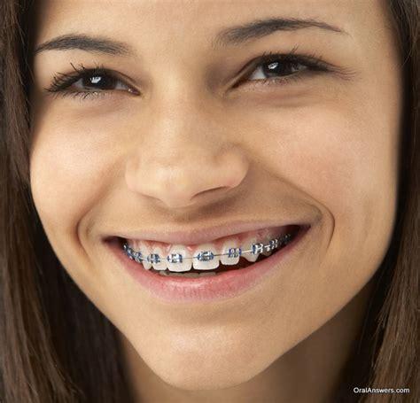 black color braces orthodontics braces answers