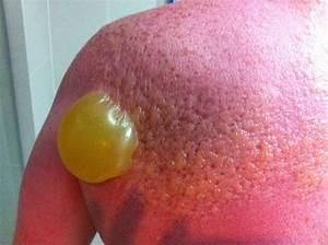 Nasty Sunburn Blister