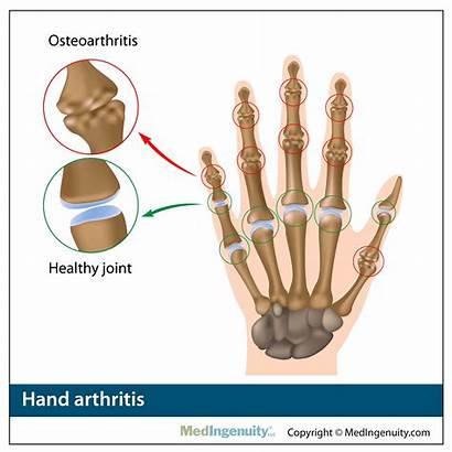 Anatomy Library Hand Orthopedic Arthritis Surgery Sports