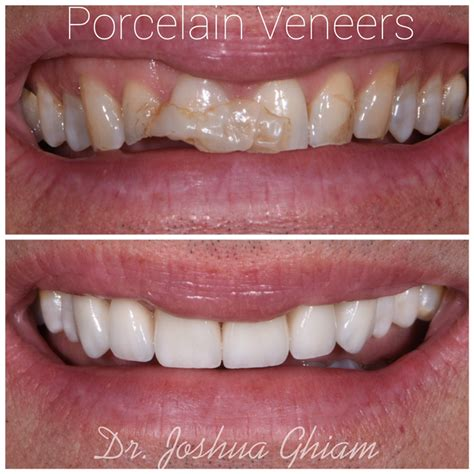 veneer prices los angeles dentist porcelain veneers specialist l a smiles dental spa 90048