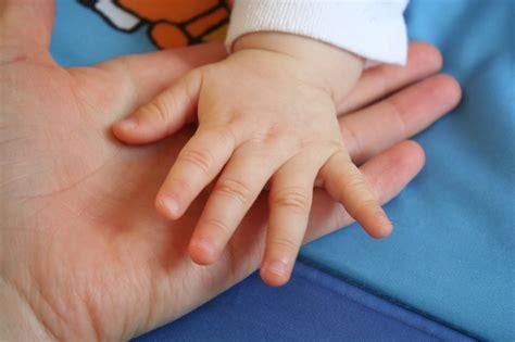 手 の 皮 が むける 子供