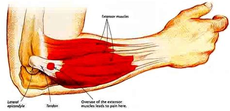 common sports injuries    avoid   fitness