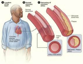 Atherosclerosis Experiment Stops Buildup Of Cholestereol Inside Blood Vessels