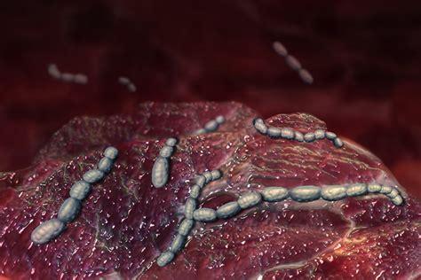 hautroetungen fieber koennen auf bakterielle