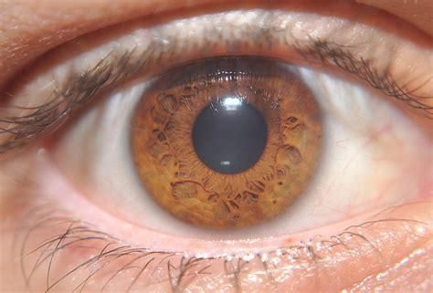 brown eye colors eye colors