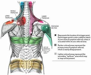 Trigger Points  U2013 A Typical Source For Pain
