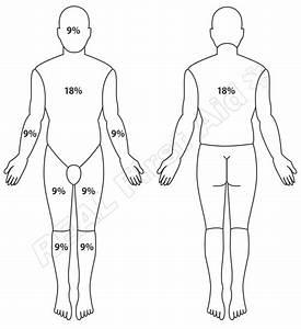 Skin Burn Diagram