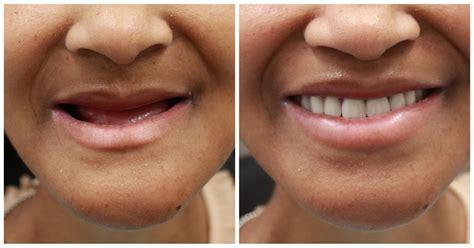 Affordable Dentures Nyc  Manhattan Denture Specialist