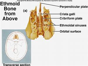 cranial sinus anatomy | III). Facial Bones | anatomy lab ...