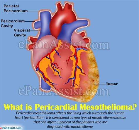 pericardial mesotheliomacausessignssymptomsdiagnosis