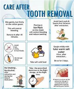25+ best ideas ... Tooth Extraction Quotes
