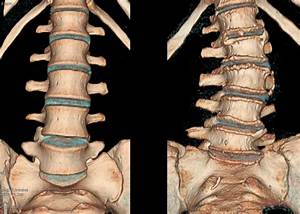 Аритмия от грудного остеохондроза