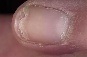 Грибок ногтя чем можно убрать