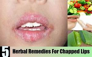 Top 5 Herbal Remedies For Chapped Lips U2019 Natural Home