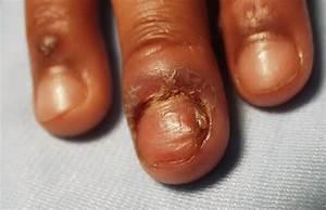 Paronychia= التهاب ما حول الظفر = الداحس