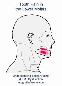 Tooth Ache Molar