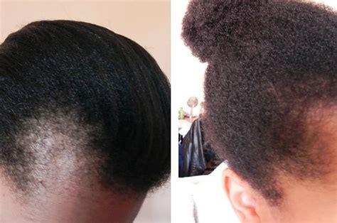 black women   told   hair