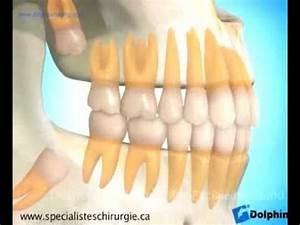 Symptome Dent De Sagesse : dents de sagesse youtube ~ Maxctalentgroup.com Avis de Voitures
