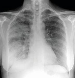Death Rates From Community Acquired Pneumonia Falling In