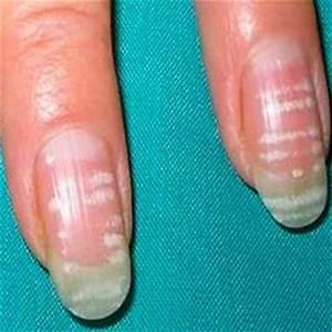 Как лечить грибок после наращивания ногтей