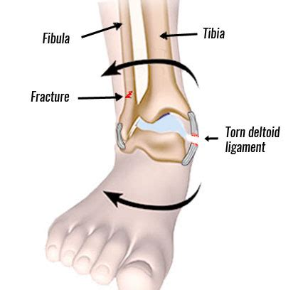 Eversion Ankle Sprain | Medial Ankle Sprain ...