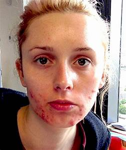 Woman with severe acne finally has clear skin - and now ...