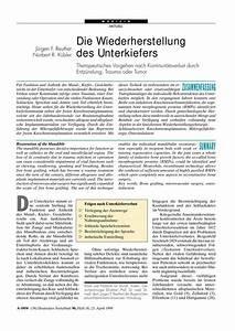 Rauchbelästigung Durch Nachbarn Vorgehen : die wiederherstellung des unterkiefers therapeutisches ~ Lizthompson.info Haus und Dekorationen