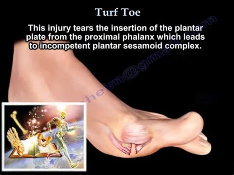 turf toe big toe pain      dr