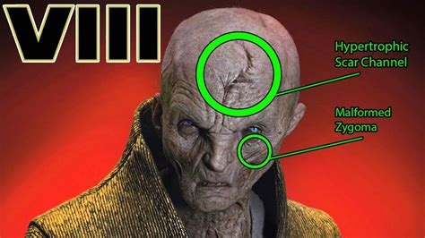 Snokes Injuries And Scars Explained Star Wars The Last